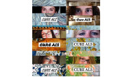 ALS Eyes for A Cure